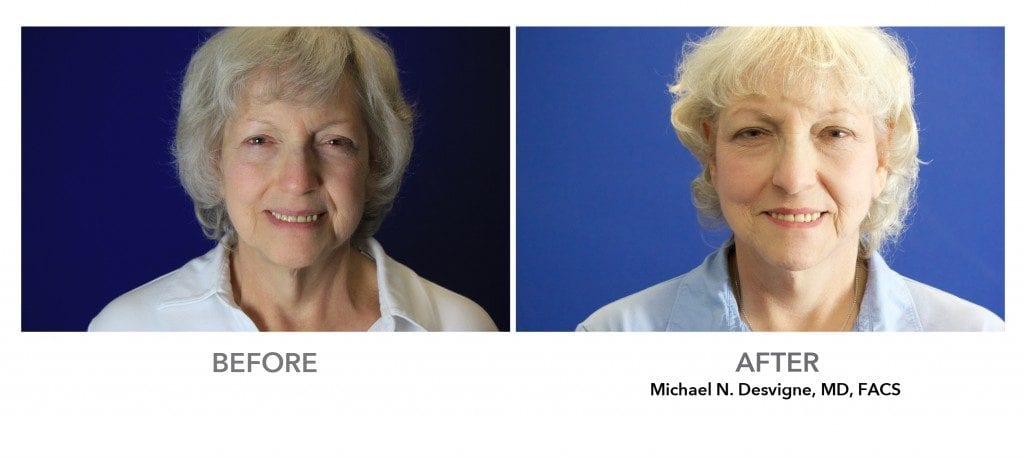 Patient's before and after neck lift . Results may vary.
