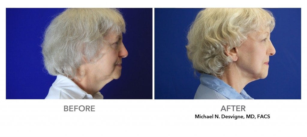 Patient's before and after neck lift - Profile view . Results may vary.